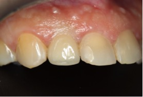 before pic of dental implant